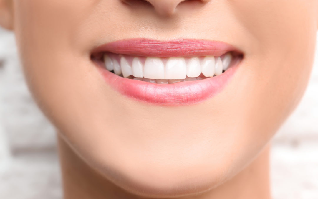Cosmetic Dentistry for Corporate Success: Promote Yourself with 5 Trick
